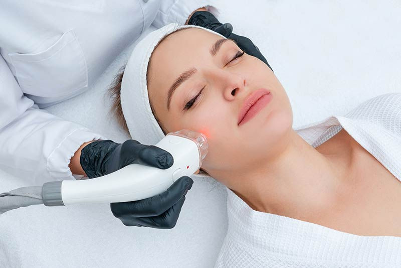 A woman smiling for her skin tightening and appearance improvement through a laser skin treatment with the Skin Doctor Melbourne