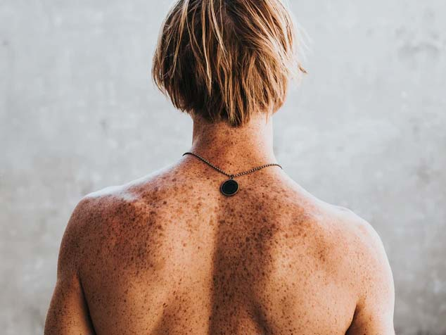 A man with freckles on the back needs regular skin cancer checks for spotting signs of sun damage before it becomes skin cancer